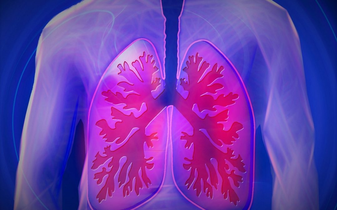 WHAT YOU SHOULD KNOW ABOUT LUNG CANCER